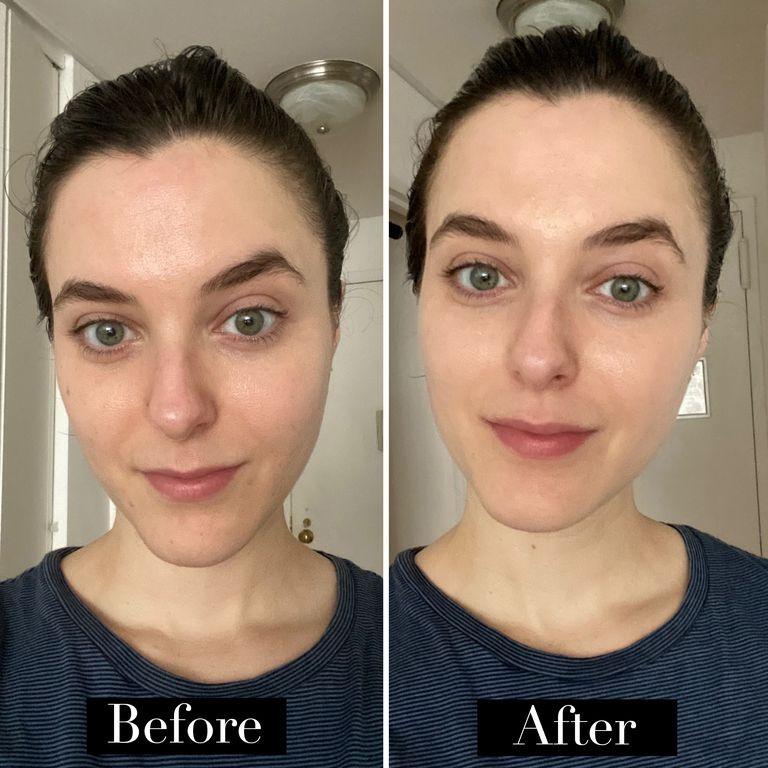 Jenna Rosentein, Beauty Director BAZAAR US sebelum dan setelah menggunakan perangkat Opte denga warna serum paling muda dan tanpa menggunakan produk makeup lain.