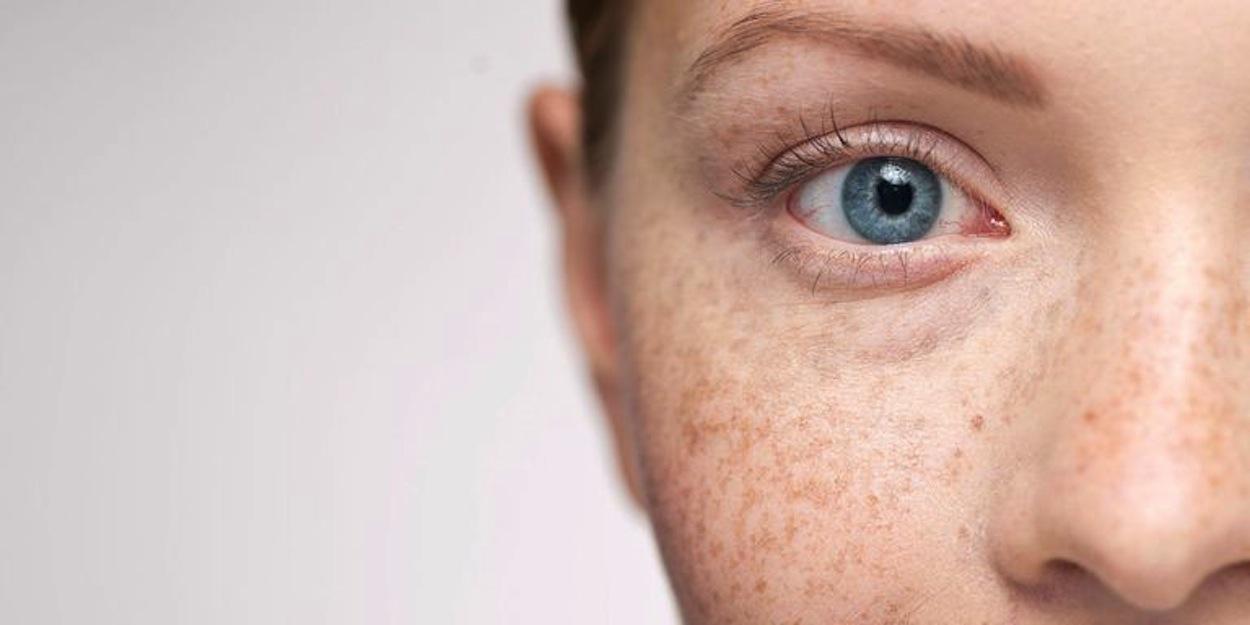 Tentang Freckles, Melasma, dan Hiperpigmentasi